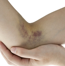 Blue Purple bruise 2 PM